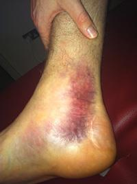Per Mertesacker Ankle